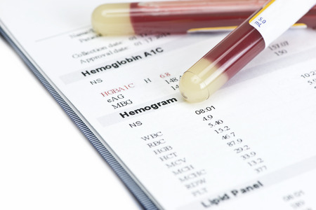 animal blood: Hematology blood level hemogram report with gold color blood sample collection tubes. Stock Photo