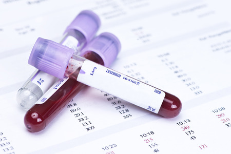 Hematology blood analysis report with lavender color blood sample collection tubes. Stok Fotoğraf - 38663453