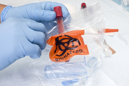 Verpleegkundige legt bloedafname en andere medische afval in biohazard afvalzak. Stockfoto