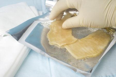 Nurse selects sterile hydrogel dressing for use on a burn or wound. Reklamní fotografie