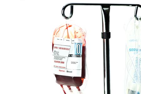 globulos blancos: Unidad de sangre tipo O negativo listo para ser infundido por vía intravenosa. Foto de archivo