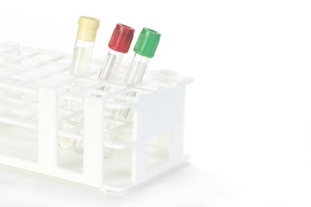 endocrinology: Assorted blood collection tubes in rack with copy space.