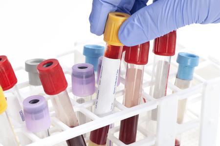 tubo de recogida de sangre de análisis seleccionada por el técnico de laboratorio. Las etiquetas y los documentos son ficticios y creado por el fotógrafo. Foto de archivo