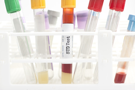 STD blood analysis collection tube with test tube rack.  Labels and document are fictitious and created by the photographer.