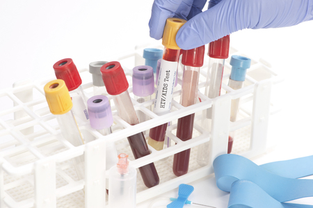immunodeficiency: HIV blood analysis collection tube selected by lab technician.  Labels and document are fictitious and created by the photographer. Stock Photo