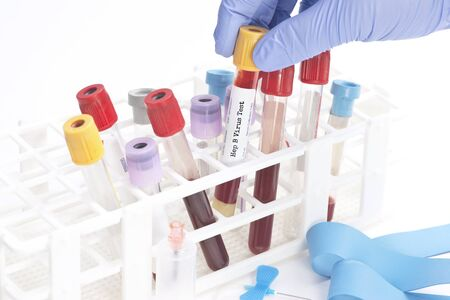 Hepatitis blood analysis collection tube selected by lab technician.  Labels and document are fictitious and created by the photographer.