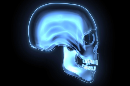skull x-ray Banque d'images