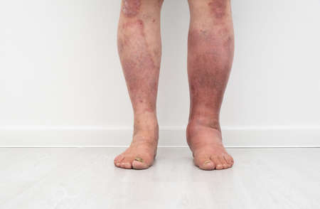 Close up photo of legs with lymphostasis front view