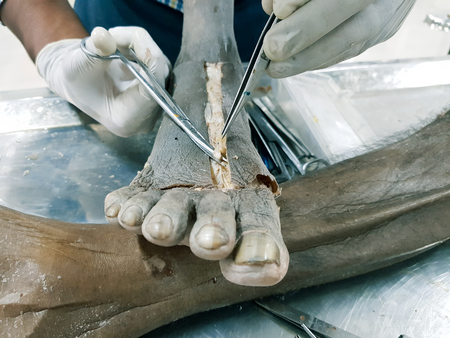 Anatomy dissection of a cadaver showing dorsum of foot using scalpel scissors and forceps cutting skin flap revealing important structures arteries veins nerves