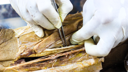 Anatomy dissection of a cadaver showing adductor canal using scalpel scissors and forceps cutting skin flap revealing important structures arteries veins nerves