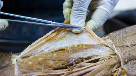 Anatomische dissectie van een kadaver met een adductorkanaal met behulp van een scalpelschaar en een tang die de huidflap doorsnijdt en belangrijke structuren blootlegt, slagaders, aders, zenuwen