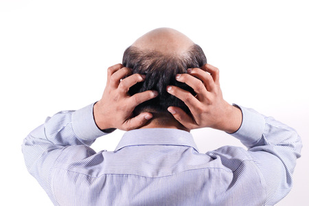 bald businessman with his head on scalp view from behind with white background
