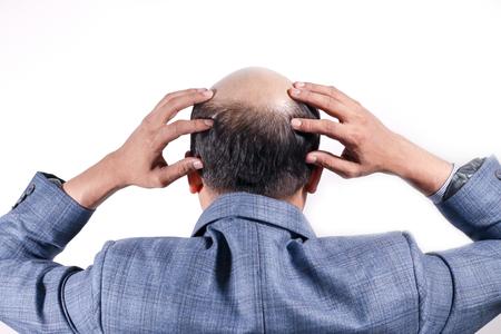 Glatzköpfiger Geschäftsmann mit Kopf auf der Kopfhaut von hinten mit weißem Hintergrund