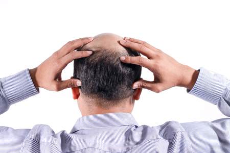 bald businessman with his head on scalp view from behind with white background Stock fotó