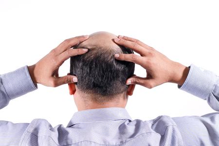 Hombre de negocios calvo con la cabeza en el cuero cabelludo vista desde atrás con fondo blanco. Foto de archivo