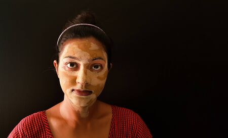 an indian lady with face pack applied in half dried condition staring at camera Banco de Imagens