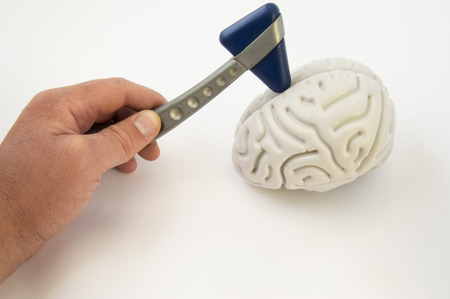 A neurologist, holding a neurological hammer, conducts examinations of the brain. The idea for the examination of the patient or a medical survey in the direction of neurology and internal medicine