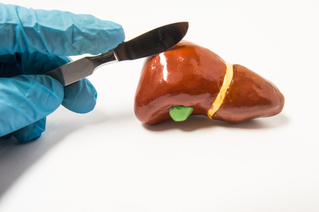 Surgeon's hand in blue latex glove holding scalpel over anatomical figure of human liver. Concept that symbolizes process of surgery treatment of liver diseases such as cancer, hydatid disease ets.