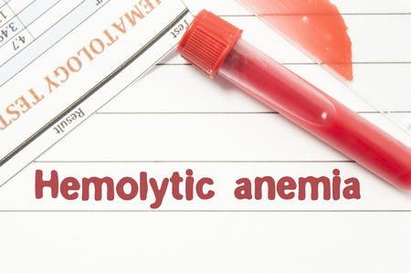 Diagnosis Hemolytic Anemia. Notepad with text labels Hemolytic Anemia, laboratory test tubes for the blood, blood smear for microscopy, and results of laboratory test of blood on table at the doctor Banco de Imagens