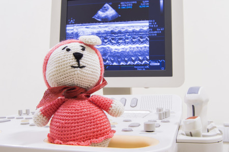 Medical ultrasound scanner and children toy knitted bunny on screen background with waves ECHO heart test or scan and ultrasonic probes. Concept photo for ultrasound examination of child in pediatrics Stock Photo