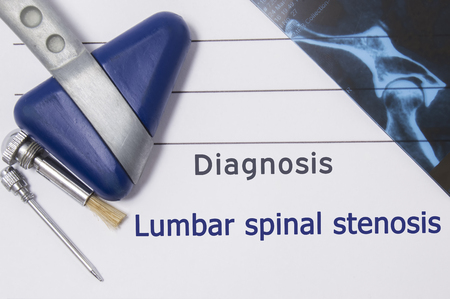 stenosis: Neurological diagnosis of Lumbar Spinal Stenosis. Neurologist directory, where is printed diagnosis Lumbar Spinal Stenosis, lies on workplace with MRI image and neurological diagnostic tools close-up