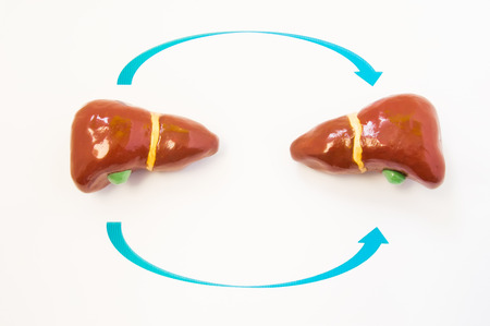 diseased: Liver transplantation concept. Two 3D model of human liver are opposite one another with arrows from one to another. Photo or illustration showing liver transplantation process from donor to recipient Stock Photo