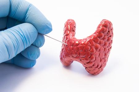 Biopsia del procedimiento de la glándula tiroides. Doctor sostenga la aguja de la punción en la mano cerca del modelo 3D anatómico de la glándula de tiroides, listo para perforar su tejido. Foto conceptual para el diagnóstico invasivo de la enfermedad tiroidea Foto de archivo