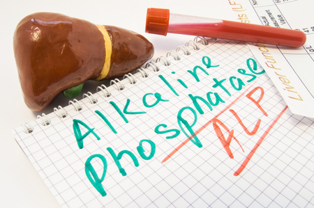 Liver figure, test tubes with blood, liver function test result are near inscription Alkaline Phosphatase ALP. Value of Alkaline Phosphatase as lab indicator in biochemistry, its levels and functions