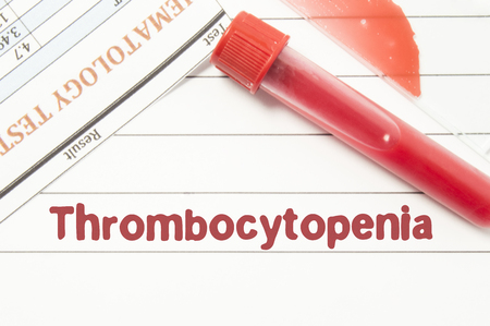 Diagnosis Thrombocytopenia. Notepad with text labels Thrombocytopenia, laboratory test tubes for the blood, blood smear for microscopy, and results of laboratory test of blood on table at the doctor