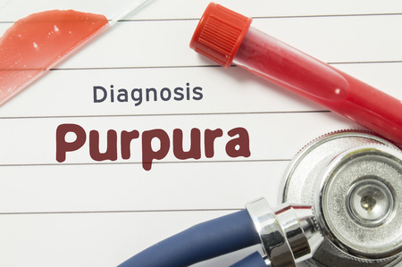Diagnosis of Purpura. Medical book with text header hematological diagnosis Purpura lies on doctor table surrounded by laboratory test tubes with blood, glass slide with blood smear and stethoscope