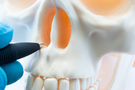 Doctor showing patient bone anatomy of skeleton of nose and nasal cavity on skull. Preparing for rhinoplasty surgery, correcting deviated nasal septum, localization of rhinitis, sinusitis in nose Stockfoto