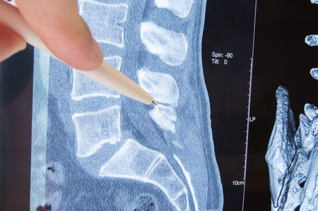 Photo MRI lumbosacral spine pathology. Radiologist indicated on possible pathology or disease of image of spine lumbosacral MRI such as sciatica, protrusion of disc, pinched nerve, hernia, stenosis