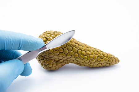 Doctor preparing to cut with scalpel figure of pancreas gland on white background. Concept photo of medical surgical interventions and surgery treatment of pancreas and hepatobiliary anatomical zone