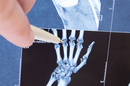 pain: X-ray scan of hand, bones and finger joints. Doctor pointed on finger small joints, where pathology is detected, such as arthritis, rheumatoid,fracture. Diagnosis of joint diseases by radiology