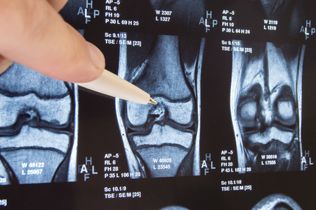 Knee joint x-ray or MRI. Doctor pointed on area of knee joint, where pathology or problem is detected, such fracture, destruction of joint, osteoarthritis. Diagnosis of knee diseases by radiology