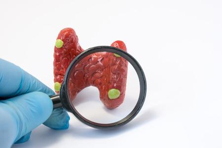 부갑상선 개념 사진의 질병, 이상 또는 병리를 검색하십시오. 돋보기를 들고 의사 그것을 통해 질병 진단 진단을 실시하는 부 갑상선 모델을 검사합니