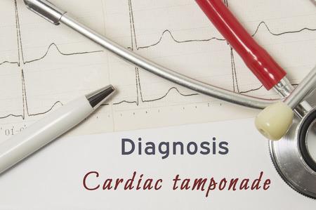 Hartdiagnose van Cardiale Tamponade. Op de werkplek van de arts is papieren medische documentatie, die de diagnose Cardiac Tamponade aangaf, omringd door een rode stethoscoop, ECG-lijn en penclose-up Stockfoto - 92333508