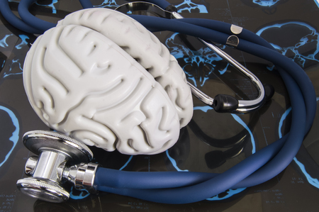 Stethoscope and human brain lied on recorded x-ray film surveys of computed tomography (SCT) or magnetic resonance imaging (MRI). Idea for visualization of complete examination of nervous system Stock Photo