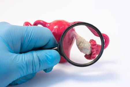 난소 개념 사진의 질병, 이상 또는 병리를 검색합니다. 돋보기를 들고 의사와 암, apoplexy, 낭종, POS와 같은 질병에 대 한 진단을 실시하는 난소 모델을