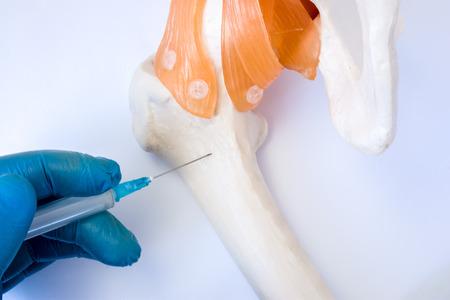 Knochenmarkuntersuchungsverfahren: Biopsie-, Aspirations- oder Parazentese-Konzeptfoto. Doktor hält in der Hand, die in der Handschuhspritzenadel und im Durchstichmodell des Hüftknochens gekleidet wird, um Analyse des Knochenmarks zu nehmen
