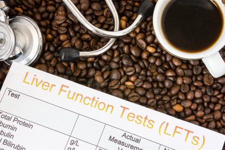 Influence of coffee or caffeine on liver functions, enzymes, activity. Result of liver function test examination near mug with coffee, stethoscope and glasses in  background roasted coffee beans Stock Photo