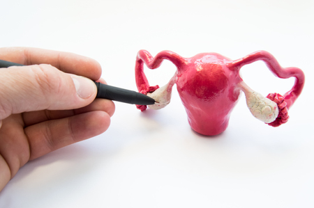Doctor or teacher points of ballpoint pen on ovaries on anatomical model of internal female sex organs. Ovaries organ where eggs are produced, male and female hormones, as well as different diseases
