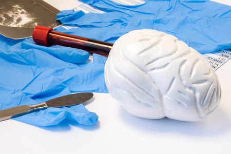 Brain and nervous surgery or neurosurgery concept. Model of brain near scalpel, ultrasound result, surgical gloves and blood test tube with blood result. Indications neurosurgery or surgical operation 版權商用圖片