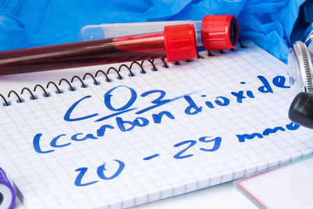 CO2 or carbon dioxide in serum or blood in basic metabolic test. Laboratory test tubes with blood smear, stethoscope or film and gloves are near note with text carbon dioxide on table in doctor office Stock Photo
