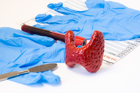 Thyroid or parathyroid gland endocrine surgery concept. Model of thyroid gland is near scalpel, surgical gloves and blood test tube with hormone result. Indications for surgery and surgical operation