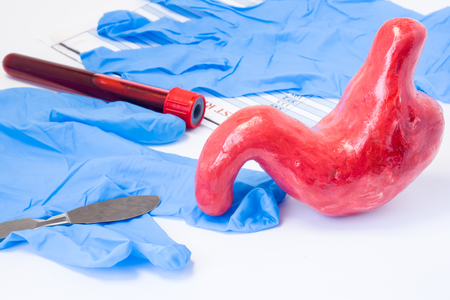 Oesophagus, stomach, duodenal or common abdominal surgery concept. Shape of stomach is near scalpel, surgical gloves and blood test tube with result. Indications for surgery and surgical operation
