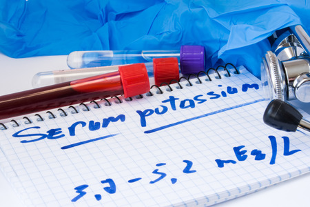Potassium in serum or blood in basic metabolic test. Laboratory test tubes with blood smear, stethoscope or film and gloves are near note with text serum potassium on table in doctor office