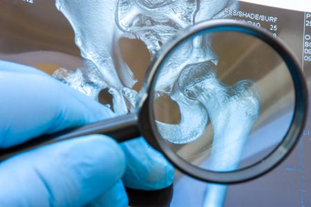 Lekarz bada zdjęcie MRI stawu biodrowego za pomocą szkła powiększającego. Staranne diagnozowanie rzadkie i często spotykane choroby stawu biodrowego, takie jak przewlekły ból, zapalenie stawów, choroba zwyrodnieniowa stawów, reumatoidalne, dysplazja Zdjęcie Seryjne