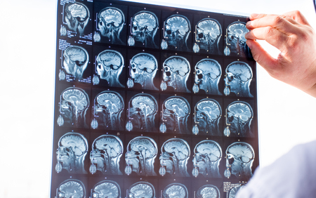 Examination of the brain with MRI. Doctor in emergency order scans fresh snapshot of patients brain MRI using x-ray view box and holding with hand, for hematoma, tumor, trauma or traumatic violations