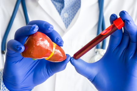 Laboratory medical diagnostics, tests and analysis for liver or hepar concept photo. Doctor or laboratory technician holds in one hand laboratory test tube with blood, in other hand - figure of liver